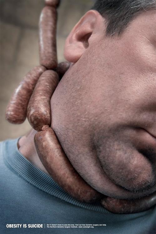 Затлъстяването е самоубийство